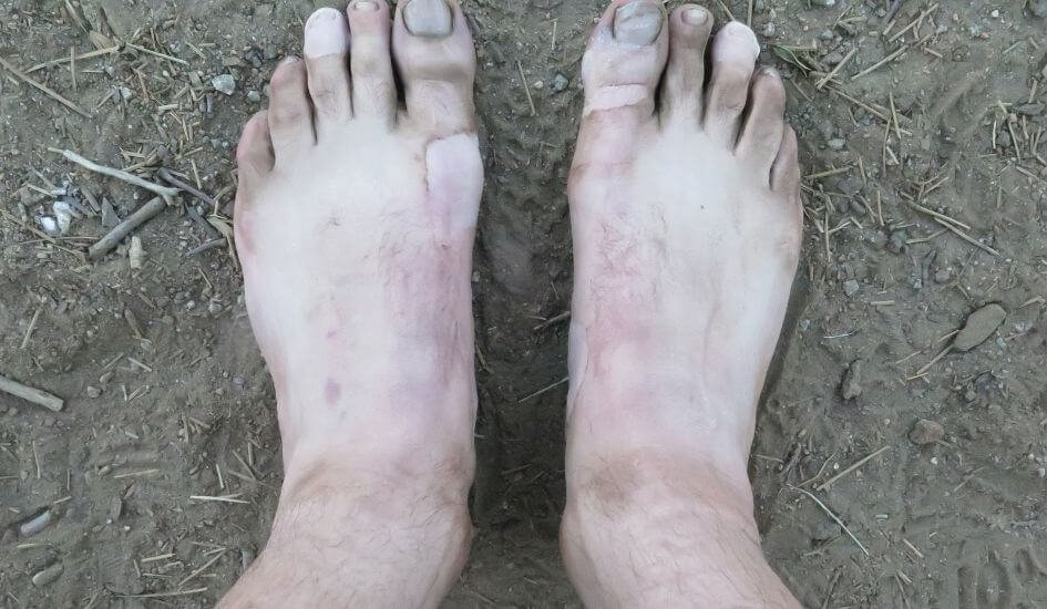 This is what feet look like when they have been treated for blisters
